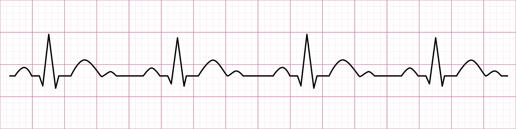 courbe cardiaque - cohérence cardiaque | Performance et coaching